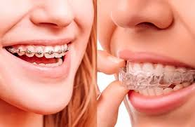 Invisible Braces For Both Jaws
